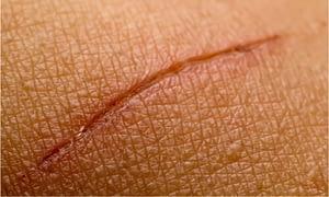 sample wound tear