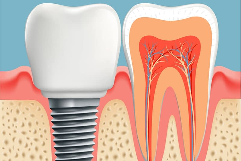Interested in dental implants? India has the solution for you.