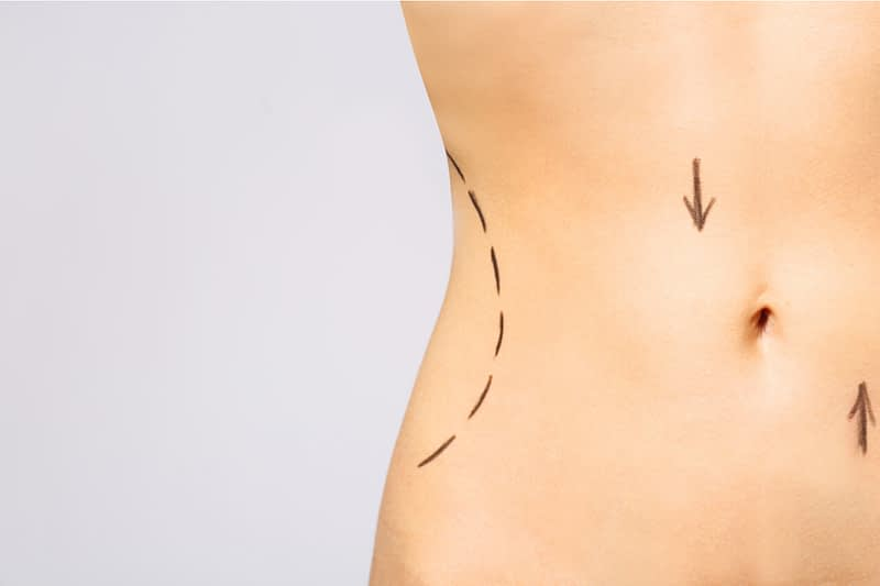 Instant abdominoplasty: Does the tummy tuck belt really work?