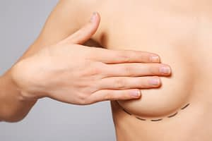 breast lift and nipple reduction