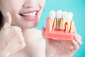 dental implant reviews
